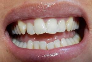 tand bleek na (Medium)