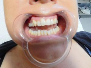 tand bleek voor (Medium)